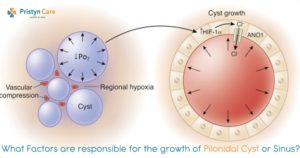 what-factors-are-responsible-for-the-growth-of-pilonidal-cyst-or-sinus-min