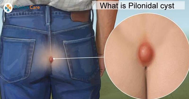 what-is-pilonidaal-cyst