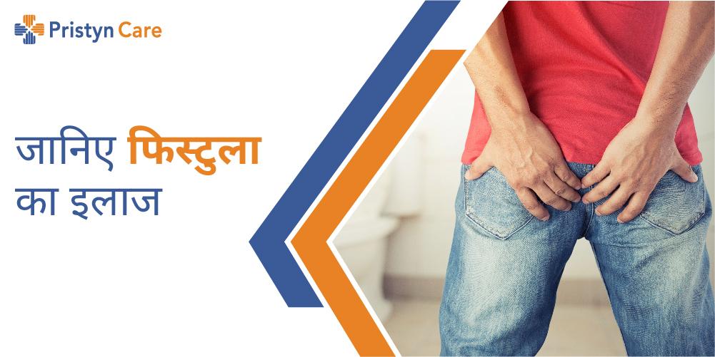 fistula-in-hindi | Pristyn Care