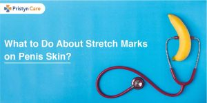 What to Do About Stretch Marks on Penis Skin?