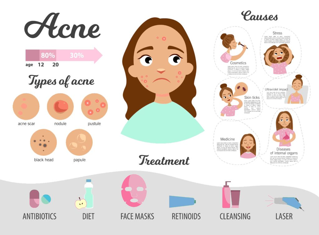 Home remedy acne