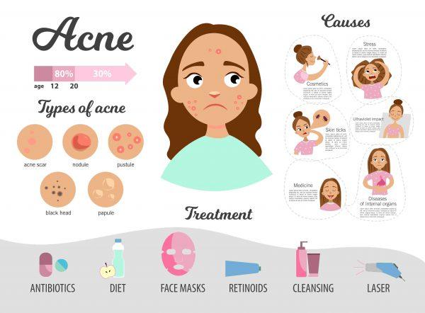 Home remedy acne