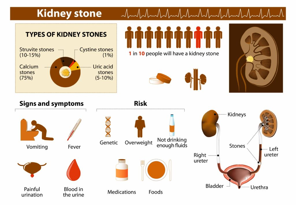 Kidney stone symptoms and risks