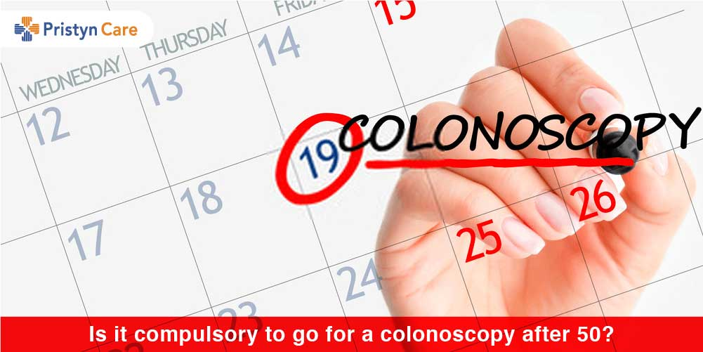 Is it compulsory to go for a colonoscopy after 50?