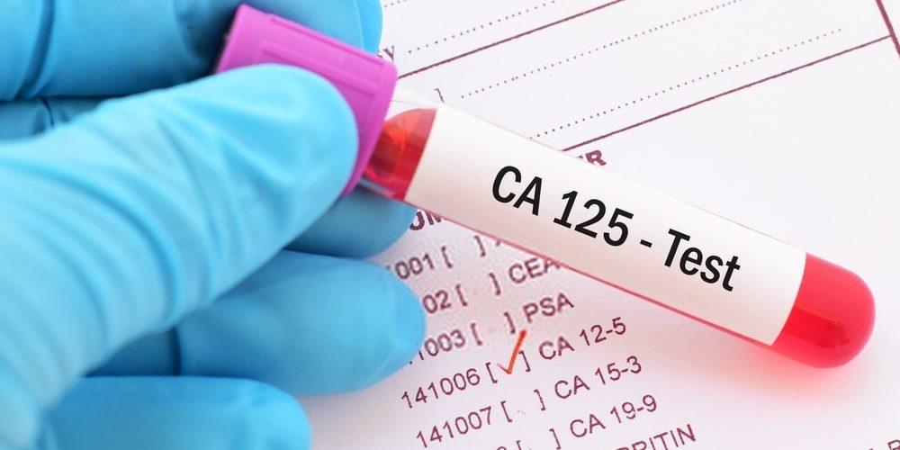 Ovarian cyst test