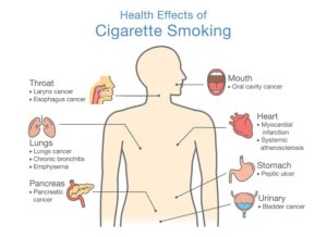 effects of smoking - Pristyn Care