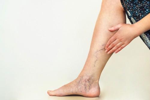 woman having varicose veins