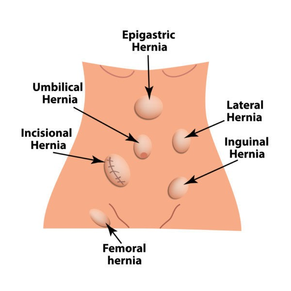 Homeopathy Medicine For Hernia Effectiveness Benefits And Side Effects Pristyn Care