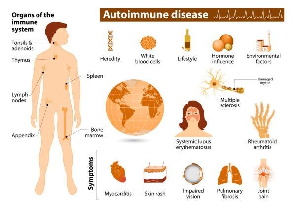 processed foods lead to autoimmune diseases