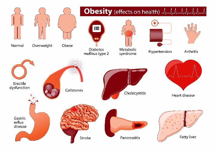 obesity effect on health