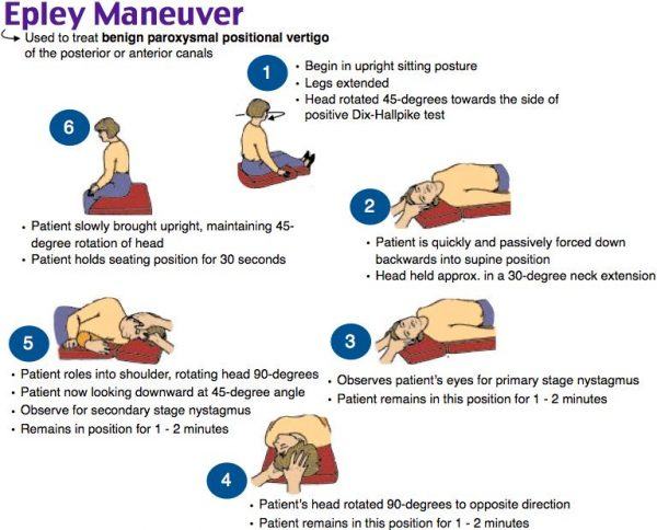 epley manuever for BPPV