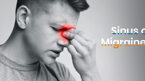 Is it sinus or migraine