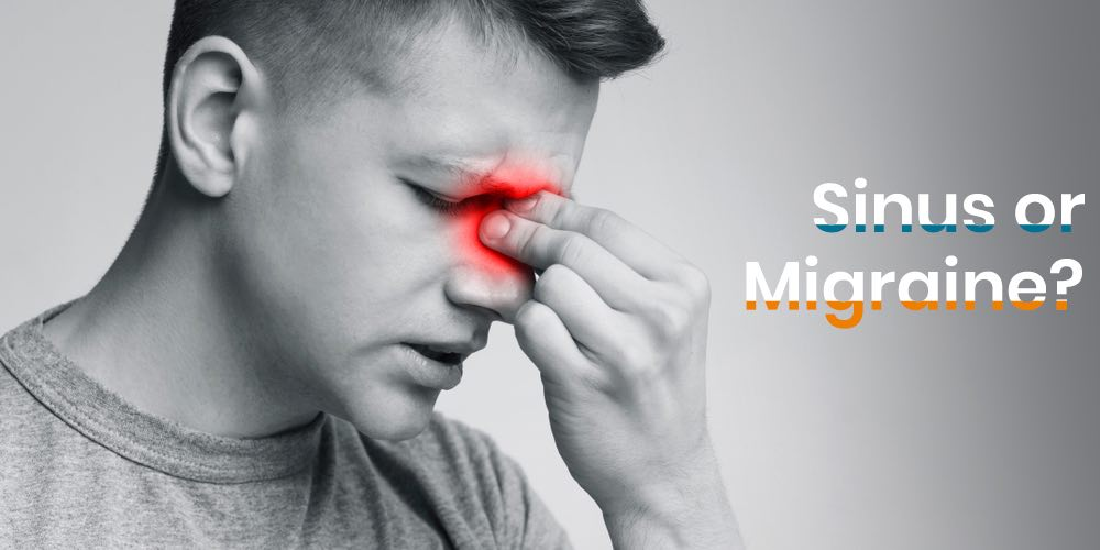 Is it sinus or migraine