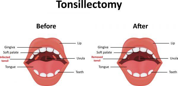tonsillectomy for peritonsillar abscess