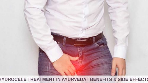 Cover image for hydrocele treatment in AyurvedaCover image for hydrocele treatment in Ayurveda