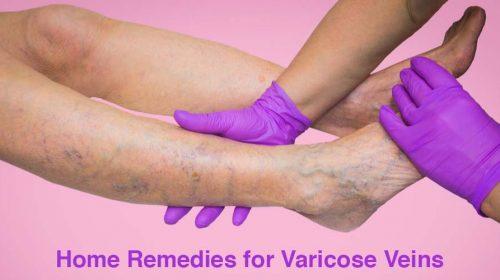 Gloved hands Checking veins in legs