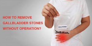 Remove gallstones without operation