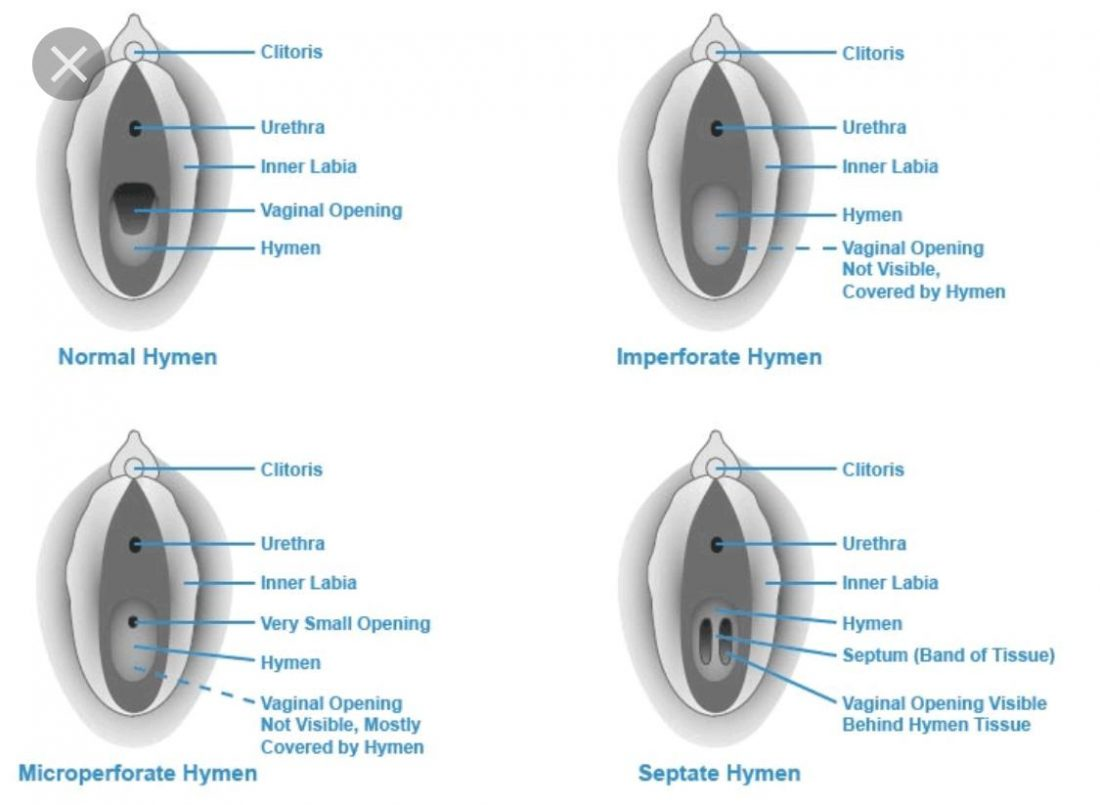 Type of hymen