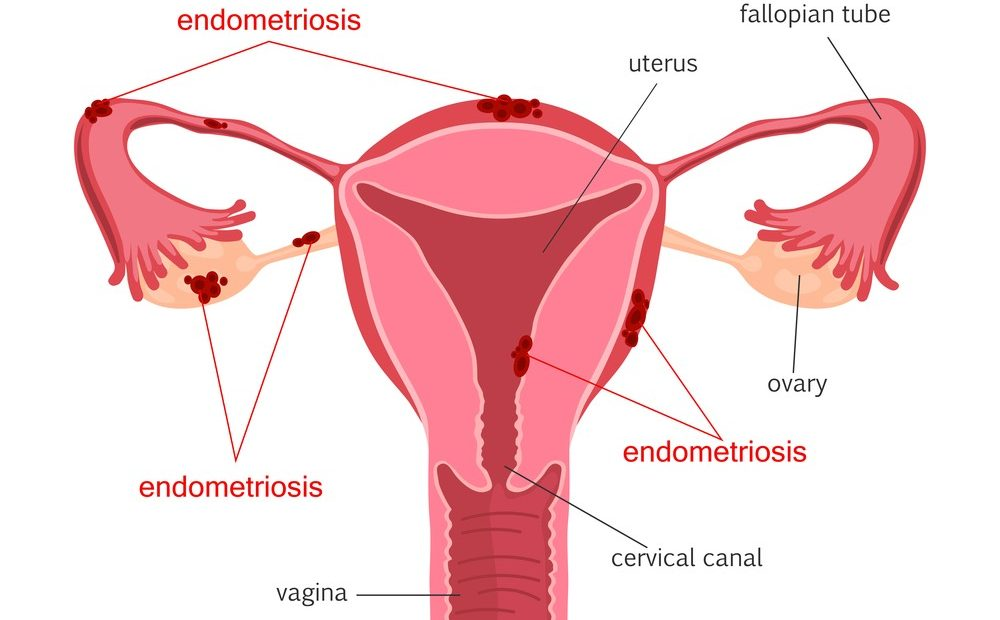 pregnancy with endometriosis