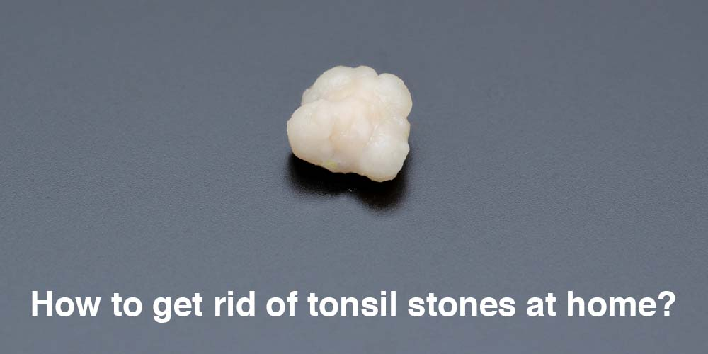 How to get rid of tonsil stones at home?