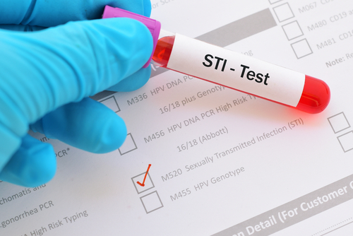 medical checkup for STI
