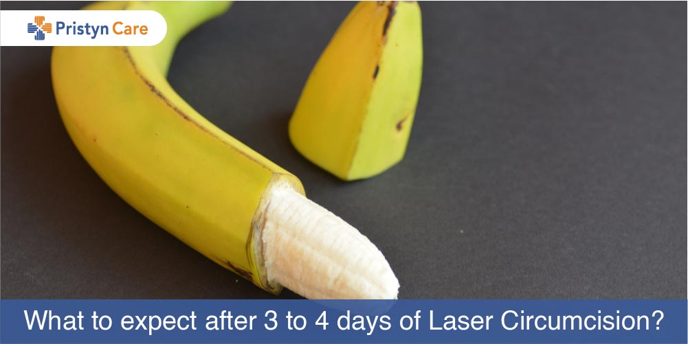 What to expect after 3 to 4 days of laser circumcision?
