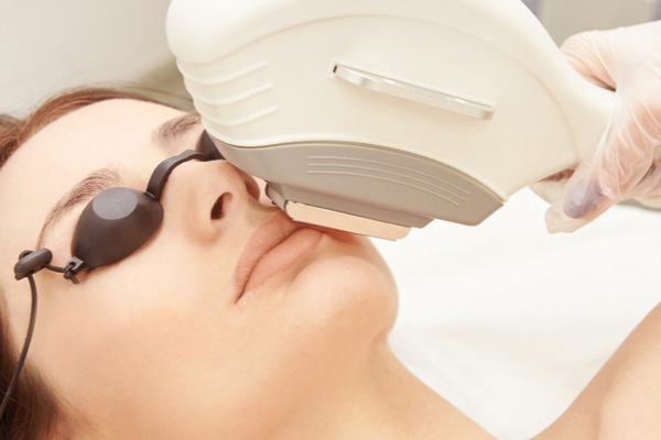 CO2 laser skin treatment