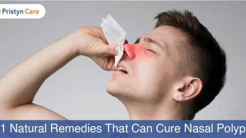Cover image for natural treatment for nasal polyps