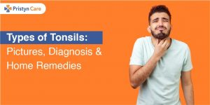Cover image for types of tonsils