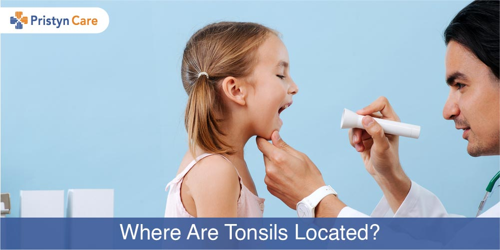 Cover image for where are the tonsils located