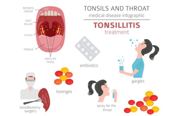 Treatment of tonsillitis in kids