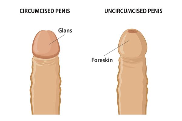 benefits of circumcision
