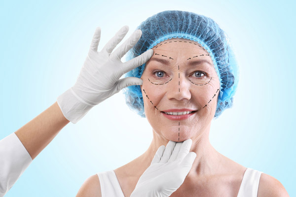 face lifting surgery