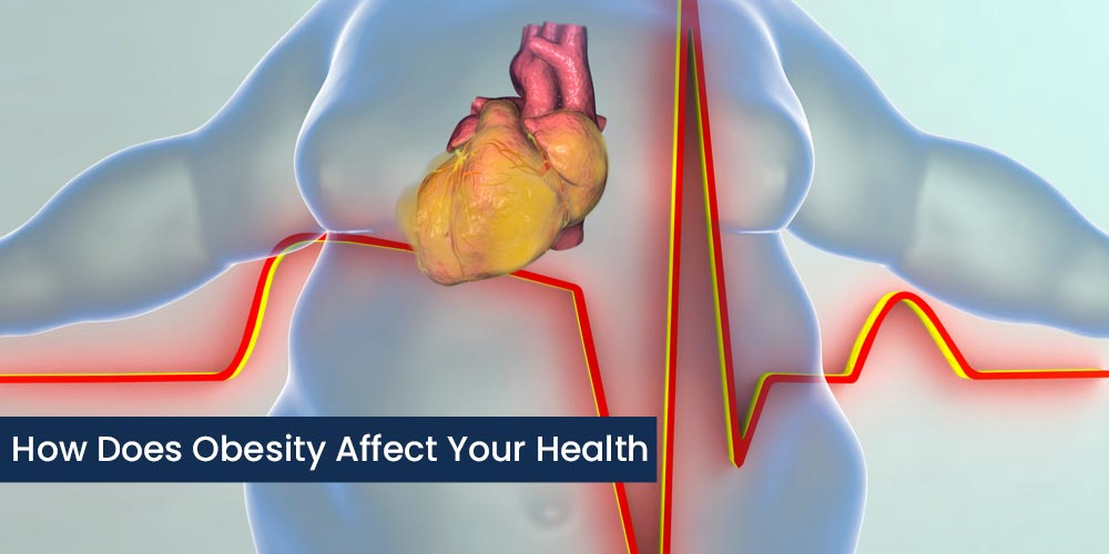 how does obesity affect your health