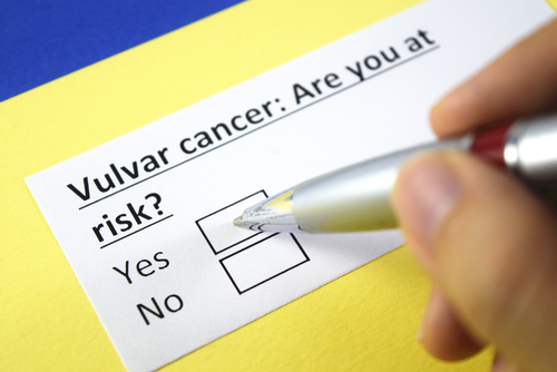 Risk of vulvar cancer with smoking