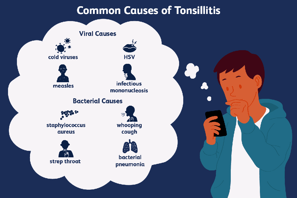 what-causes-swollen-tonsils