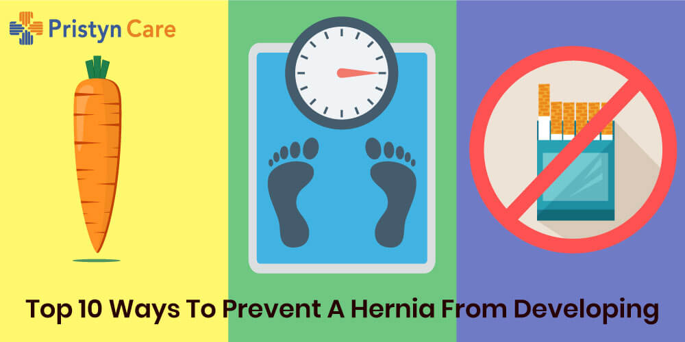 Cover image for 10 ways to prevent hernia from developing