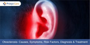 Cover image for Otoscelrosis-Causes, Symptoms, Treatment