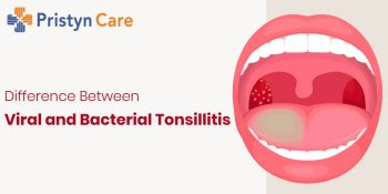 Cover image for bacterial and viral tonsillitis