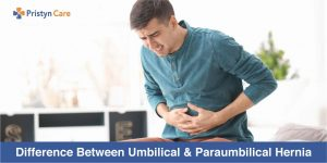 Cover image for difference between umbilical and paraumbilical hernia