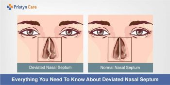 Correlation between a deviated septum and chronic sinusitis!