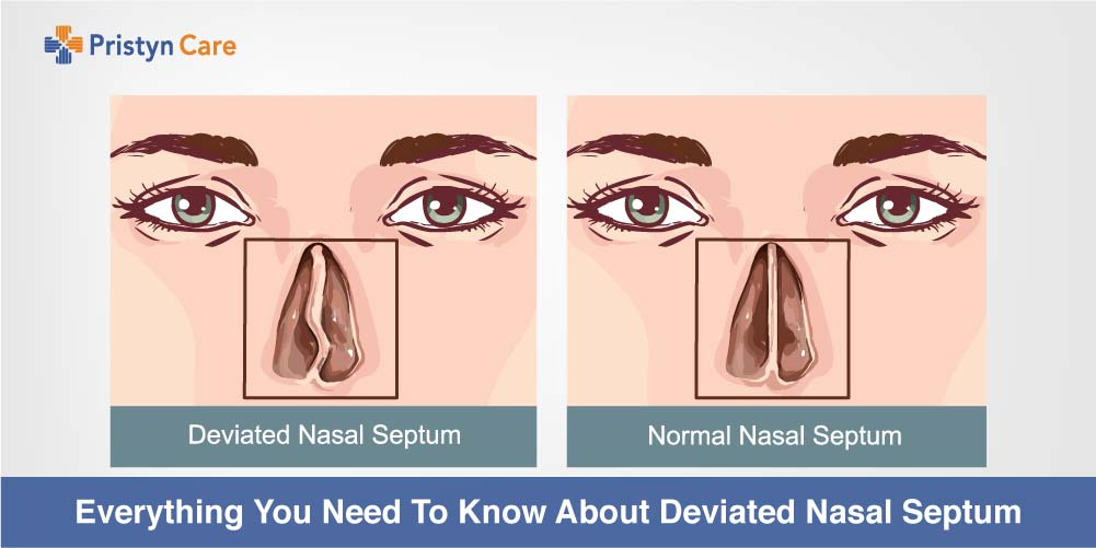 Cover image for everything to know about deviated septum