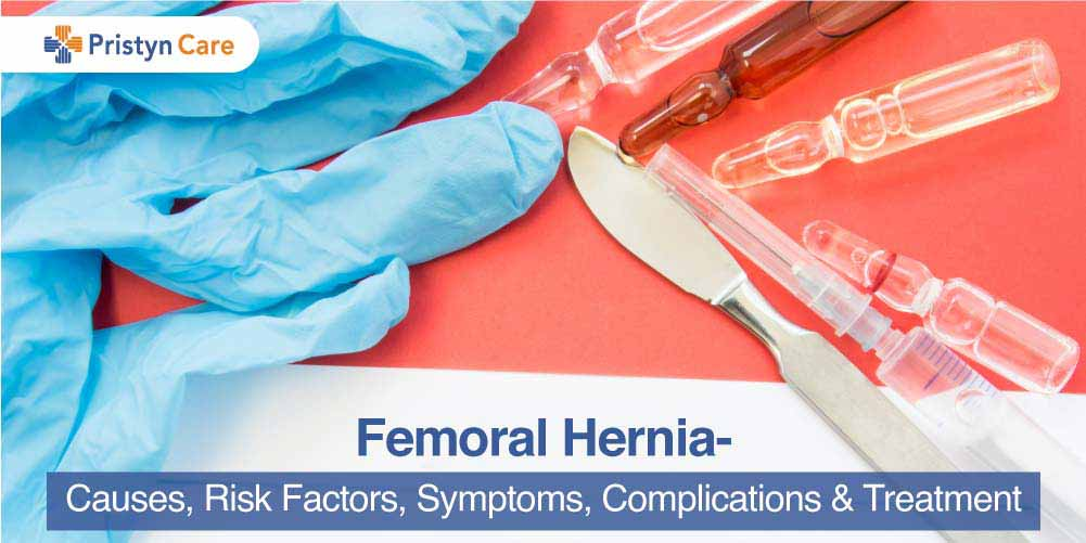Cover image for femoral hernia