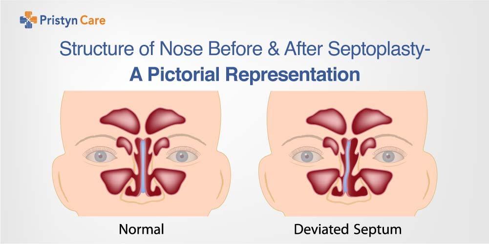 Cover image for nose before and after septoplasty