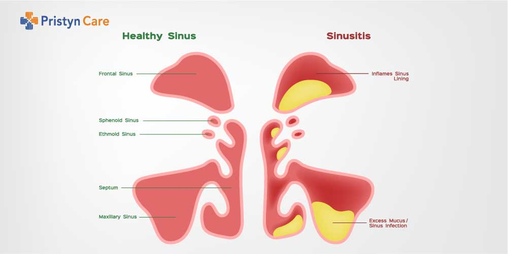 Difference between healthy and infected sinuses