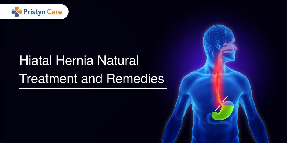 Hiatal hernia Natural treatment
