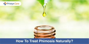 How To treat phimosis naturally