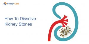 How to dissolve kidney stones