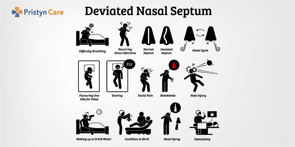 Infographic of a deviated septum