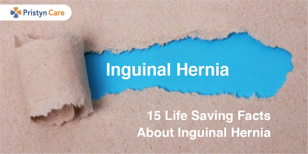 Inguinal Hernia Facts